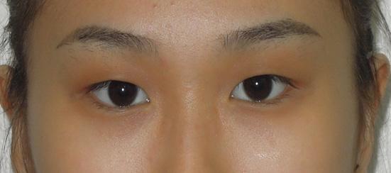 Pembentukan-Lipatan-Mata--Kaedah-Sulamb