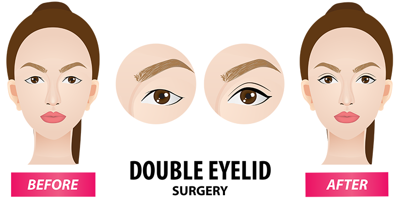 01-double-eyelid-big-eye-surgery