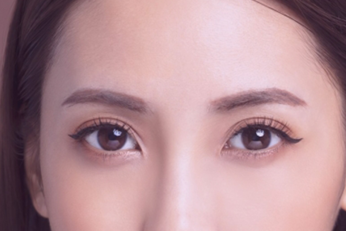 Eye-Bags-Removal